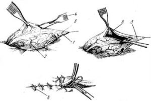 схема цистотомия