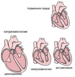 кардиомиопатии виды