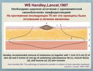 хирургия меланом